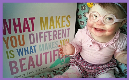 downs syndrome abortion